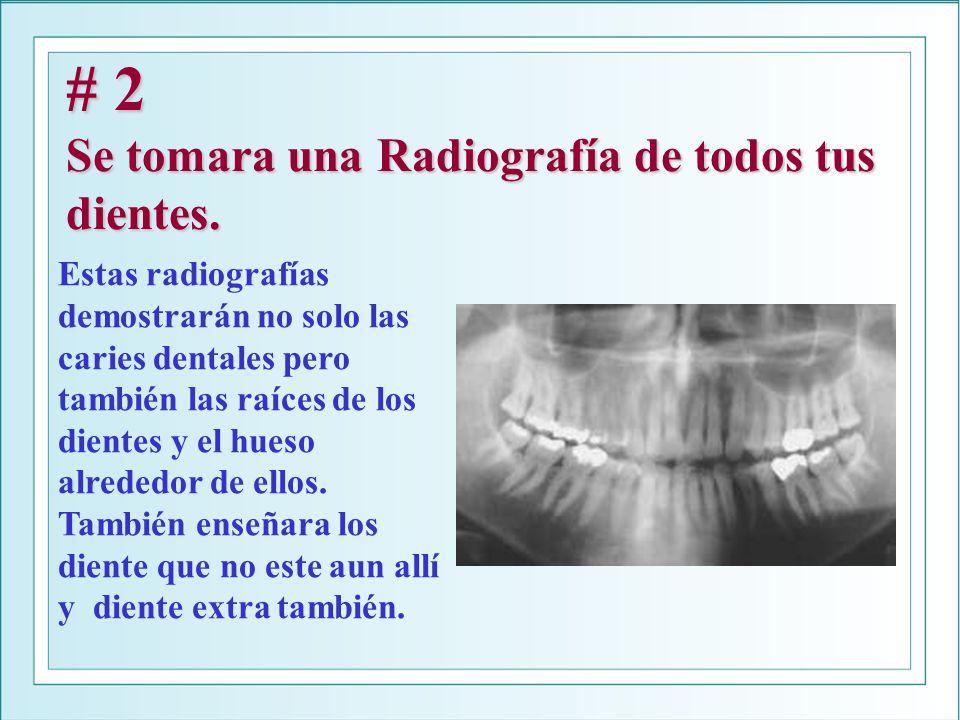 # 2 Se tomara una Radiografía de todos tus dientes. Estas radiografías demostrarán no solo las caries dentales pero también las raíces de los dientes