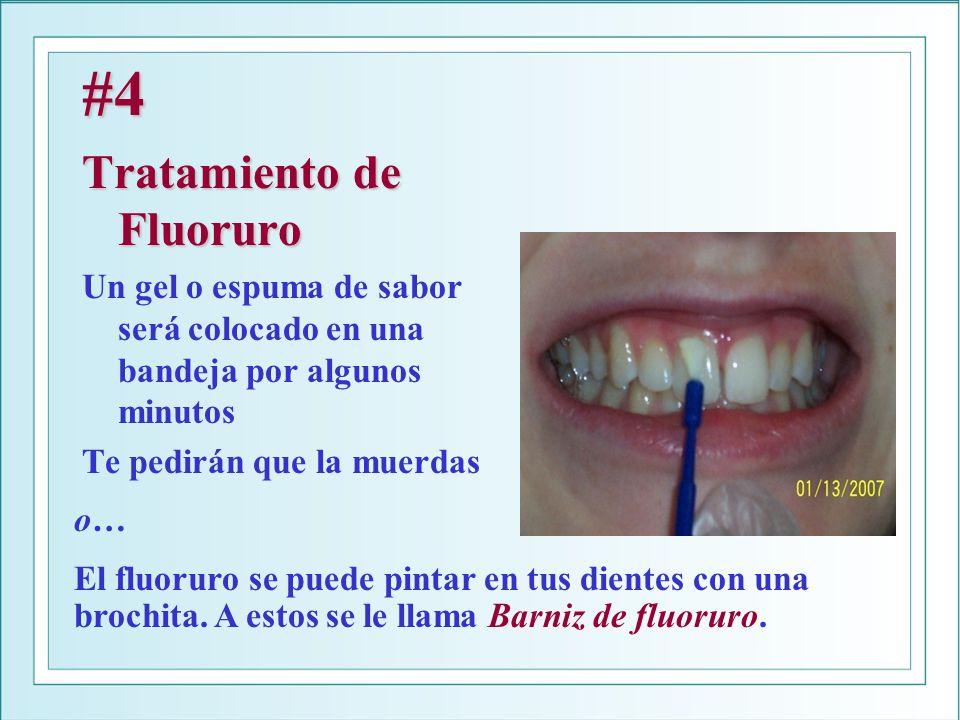 #4 Tratamiento de Fluoruro Un gel o espuma de sabor será colocado en una bandeja por algunos minutos Te pedirán que la muerdas o… El fluoruro se puede