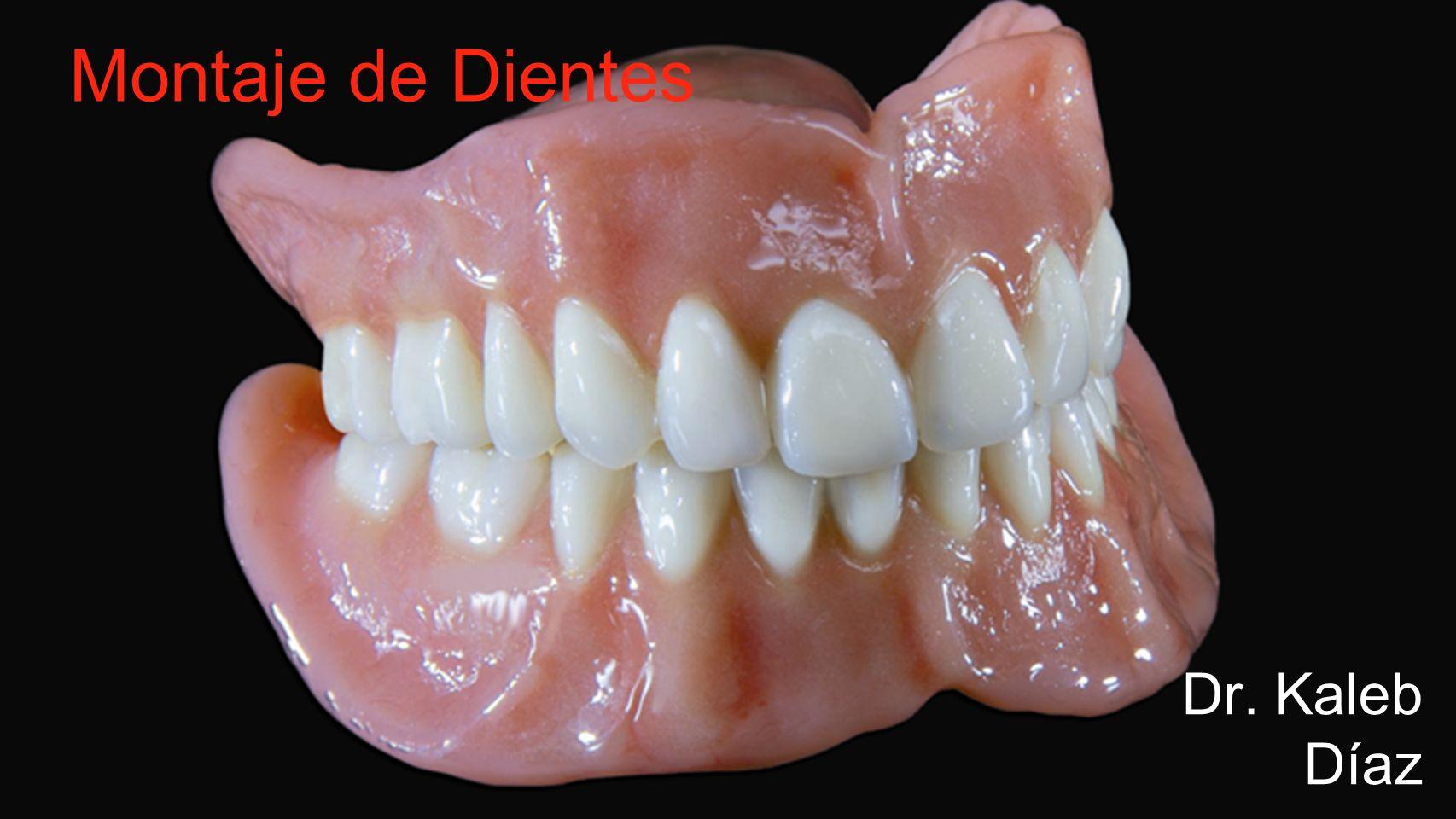 Dr. Kaleb Díaz Montaje de Dientes