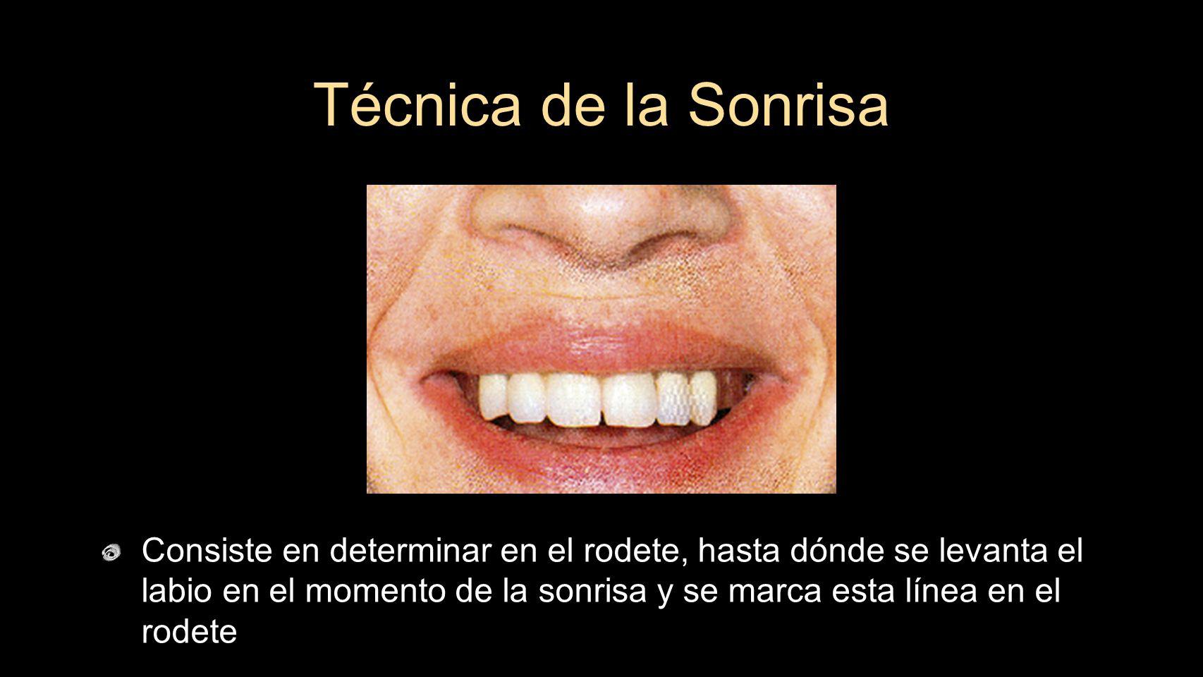 Consiste en determinar en el rodete, hasta dónde se levanta el labio en el momento de la sonrisa y se marca esta línea en el rodete Técnica de la Sonr