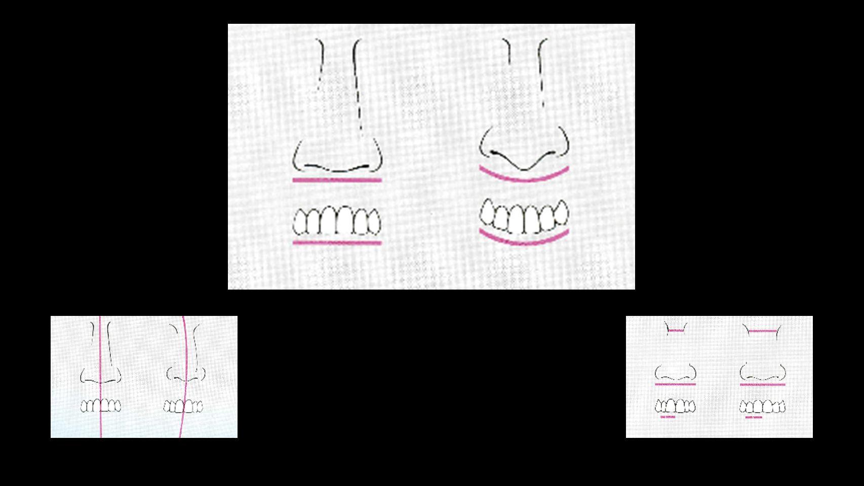 Los materiales usados en la fabricación de los dientes artificiales, son primordialmente: Porcelana Resinas acrílicas Resinas Compuestas Material de los Dientes Artificiales