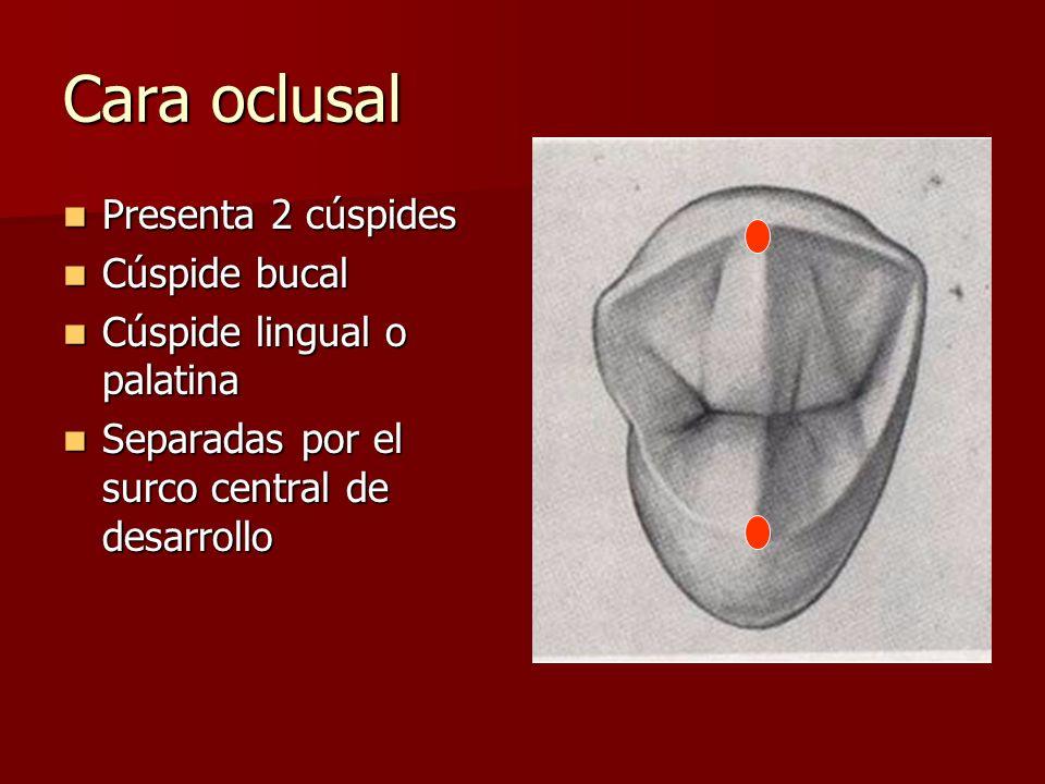 Cara oclusal Presenta 2 cúspides Presenta 2 cúspides Cúspide bucal Cúspide bucal Cúspide lingual o palatina Cúspide lingual o palatina Separadas por e