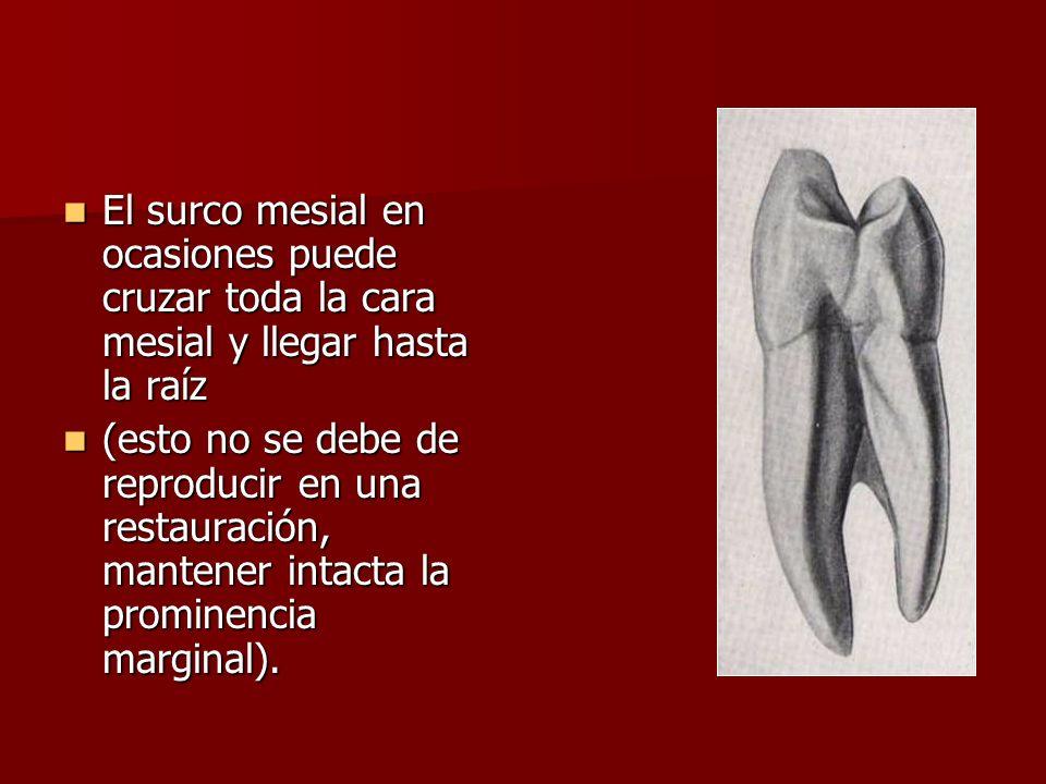 El surco mesial en ocasiones puede cruzar toda la cara mesial y llegar hasta la raíz El surco mesial en ocasiones puede cruzar toda la cara mesial y l