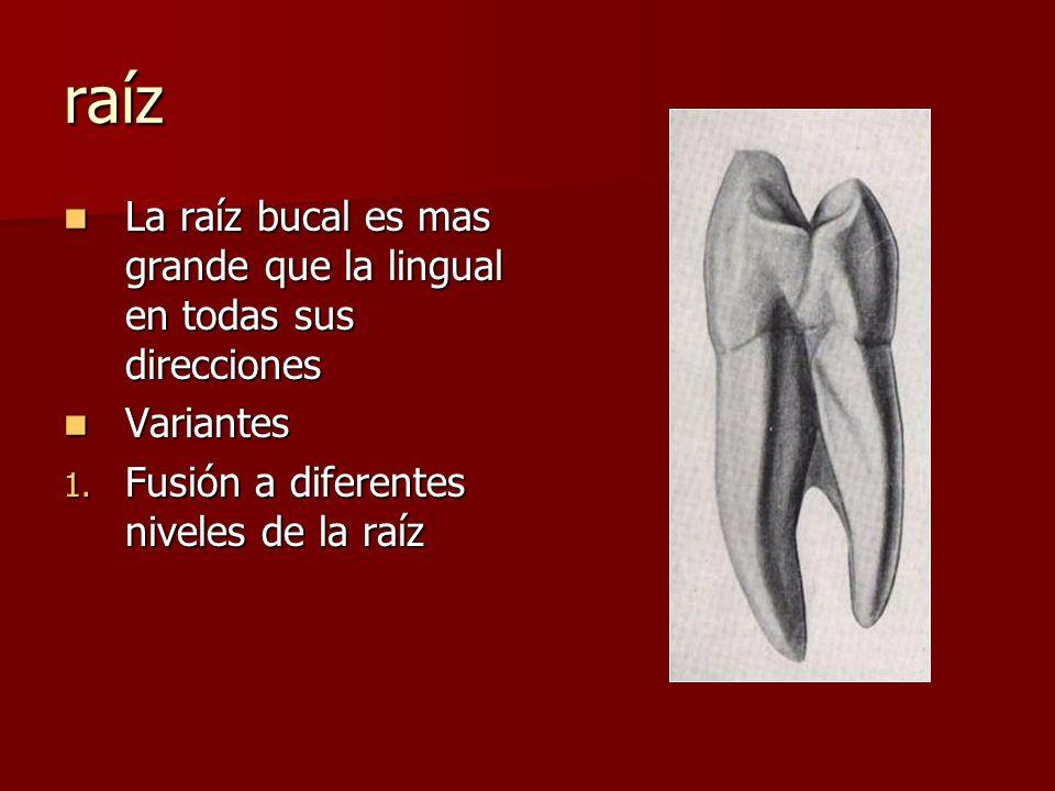 raíz La raíz bucal es mas grande que la lingual en todas sus direcciones La raíz bucal es mas grande que la lingual en todas sus direcciones Variantes