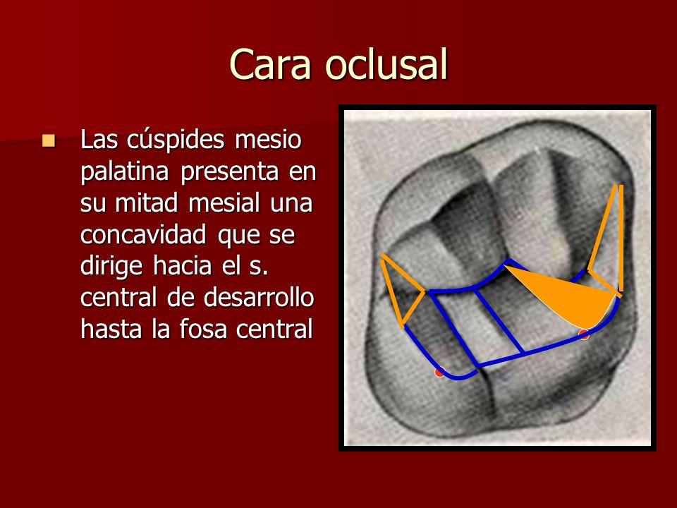 Cara oclusal Las cúspides mesio palatina presenta en su mitad mesial una concavidad que se dirige hacia el s. central de desarrollo hasta la fosa cent