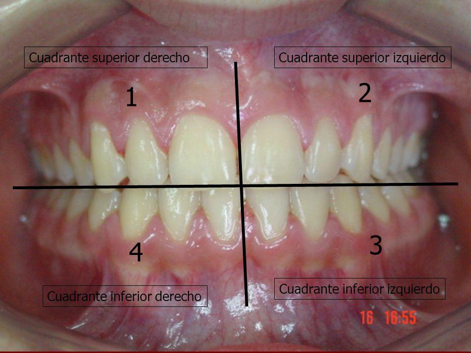 Cuadrante superior derechoCuadrante superior izquierdo Cuadrante inferior derecho Cuadrante inferior izquierdo 1 2 4 3