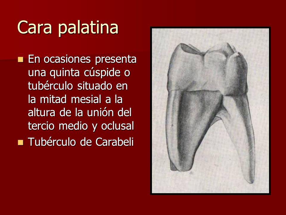Cara palatina En ocasiones presenta una quinta cúspide o tubérculo situado en la mitad mesial a la altura de la unión del tercio medio y oclusal En oc