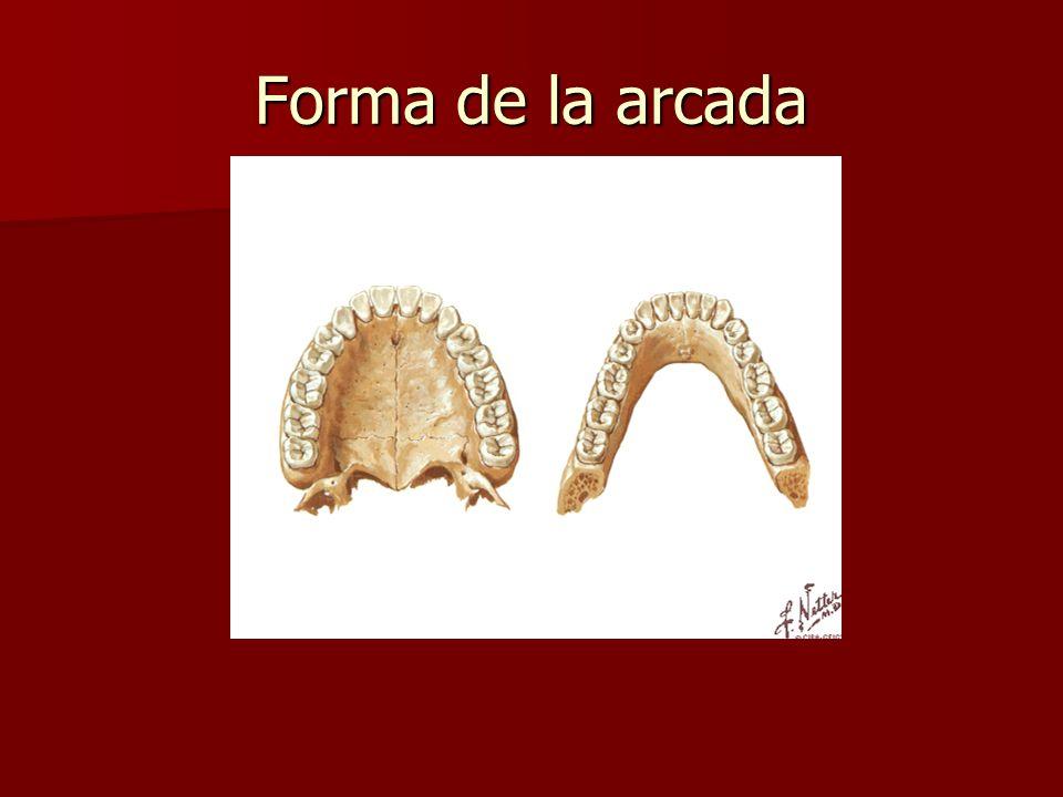 Forma de la arcada