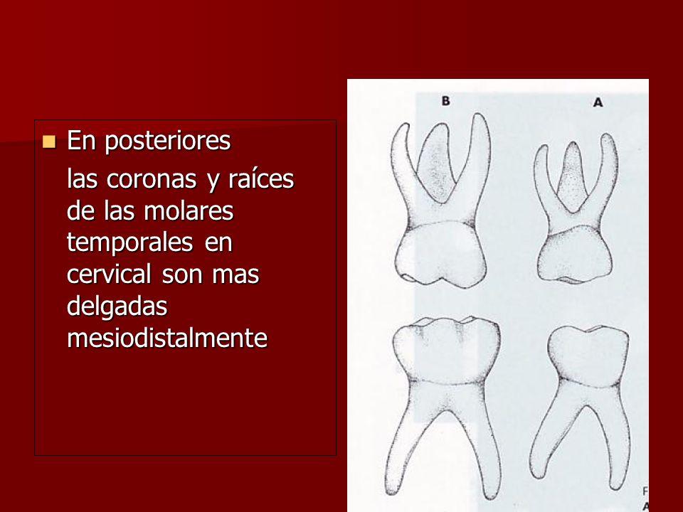 En posteriores En posteriores las coronas y raíces de las molares temporales en cervical son mas delgadas mesiodistalmente