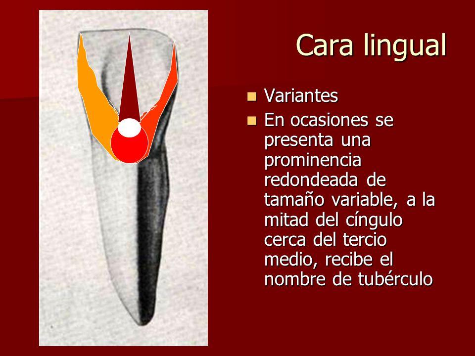 Cara lingual Variantes Variantes En ocasiones se presenta una prominencia redondeada de tamaño variable, a la mitad del cíngulo cerca del tercio medio