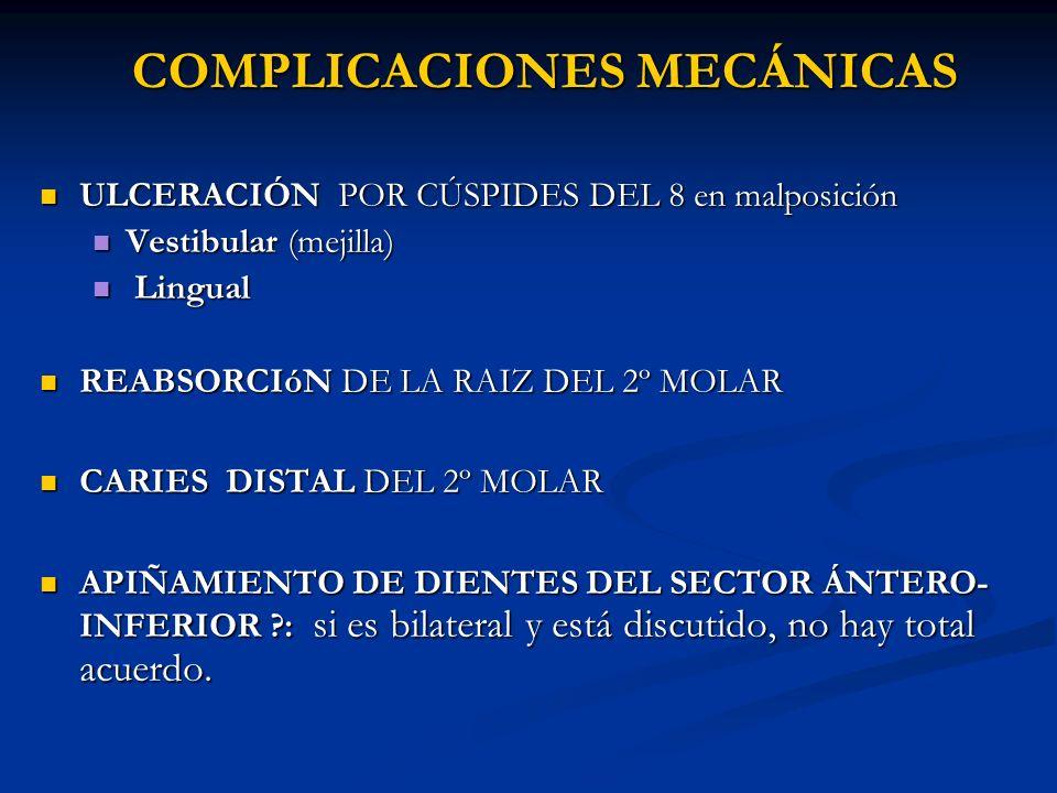 COMPLICACIONES MECÁNICAS ULCERACIÓN POR CÚSPIDES DEL 8 en malposición ULCERACIÓN POR CÚSPIDES DEL 8 en malposición Vestibular (mejilla) Vestibular (me