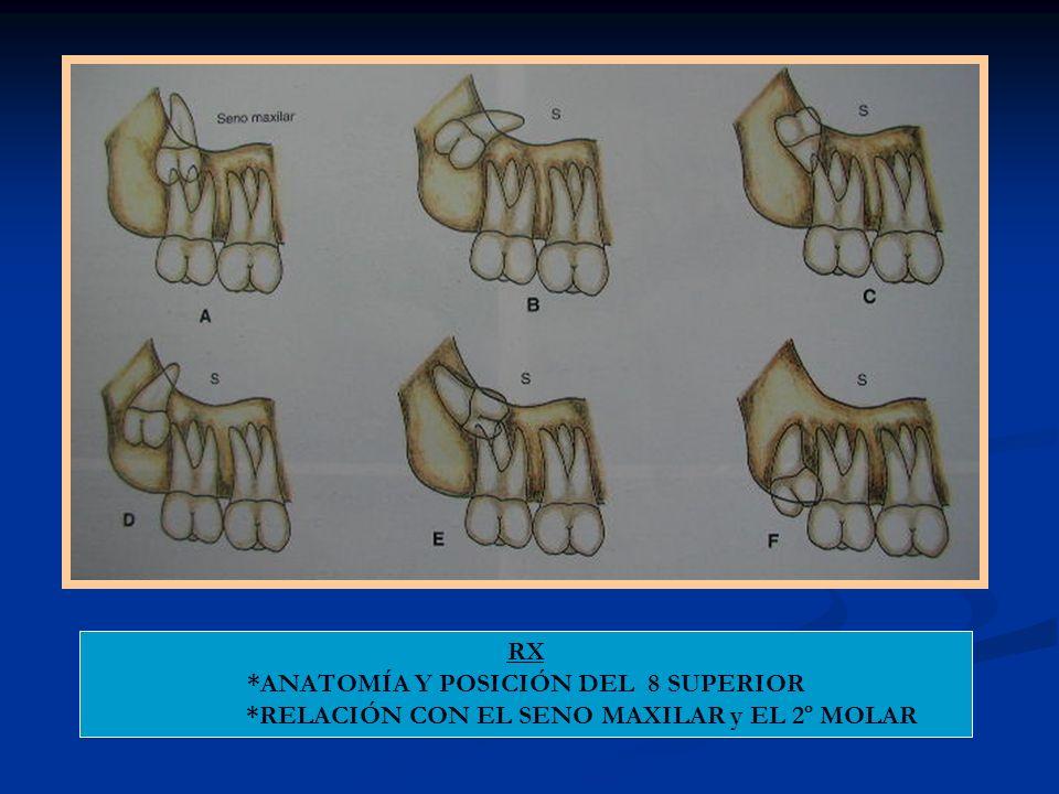 RX *ANATOMÍA Y POSICIÓN DEL 8 SUPERIOR *RELACIÓN CON EL SENO MAXILAR y EL 2º MOLAR