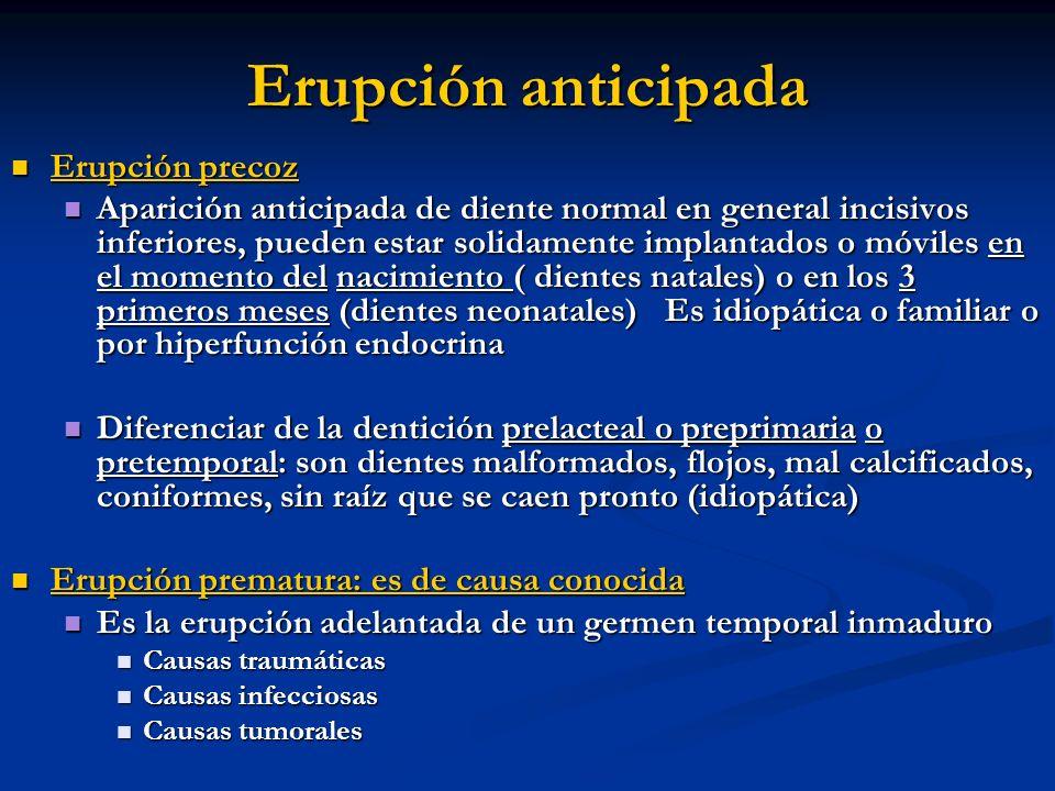 Erupción anticipada Erupción precoz Erupción precoz Aparición anticipada de diente normal en general incisivos inferiores, pueden estar solidamente im
