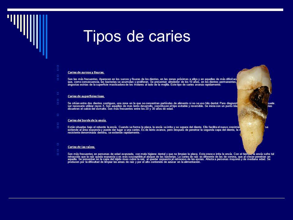 Tipos de caries Caries de surcos y fisuras. Son las más frecuentes. Aparecen en los surcos y fisuras de los dientes, en las zonas próximas a ellos y e