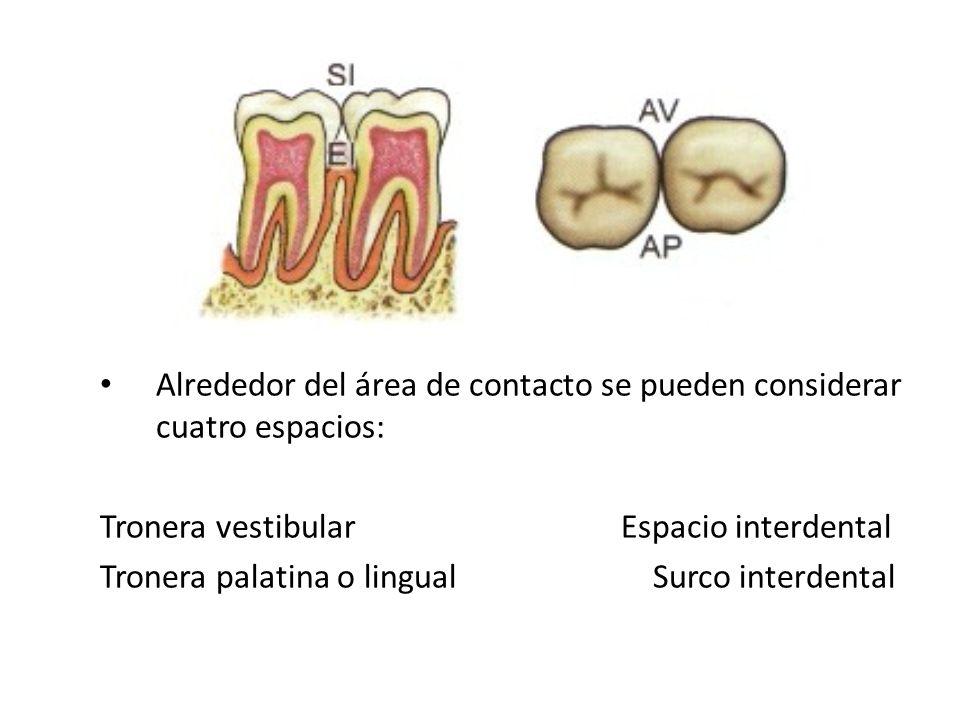 Alrededor del área de contacto se pueden considerar cuatro espacios: Tronera vestibular Espacio interdental Tronera palatina o lingual Surco interdent