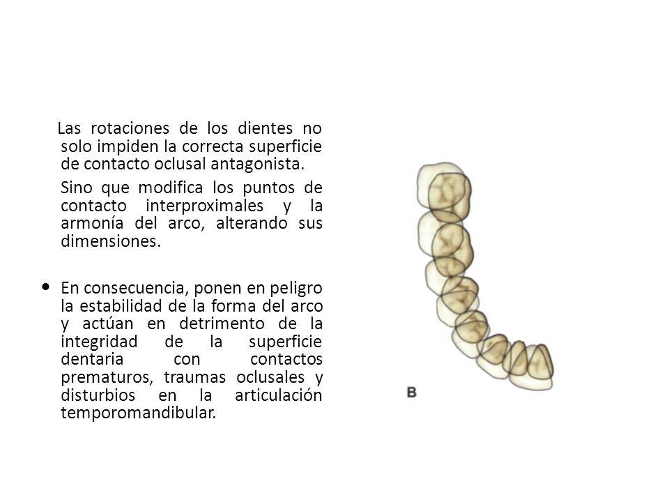 Las rotaciones de los dientes no solo impiden la correcta superficie de contacto oclusal antagonista. Sino que modifica los puntos de contacto interpr