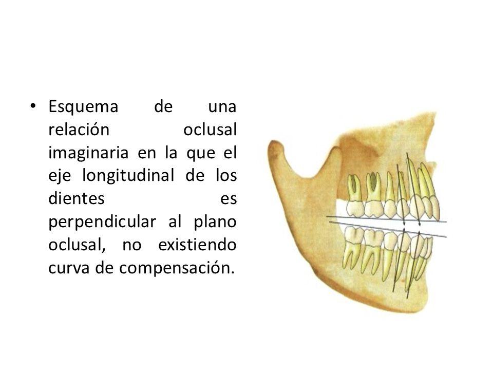 Esquema de una relación oclusal imaginaria en la que el eje longitudinal de los dientes es perpendicular al plano oclusal, no existiendo curva de comp