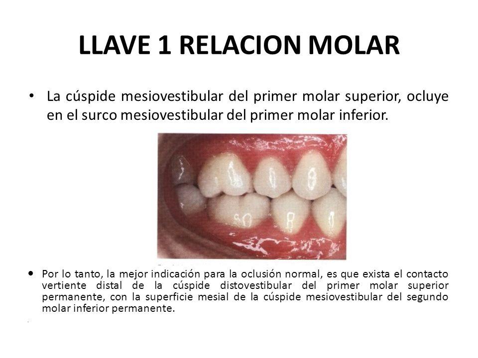 LLAVE 1 RELACION MOLAR La cúspide mesiovestibular del primer molar superior, ocluye en el surco mesiovestibular del primer molar inferior. Por lo tant