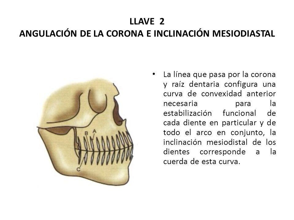 LLAVE 2 ANGULACIÓN DE LA CORONA E INCLINACIÓN MESIODIASTAL La línea que pasa por la corona y raíz dentaria configura una curva de convexidad anterior