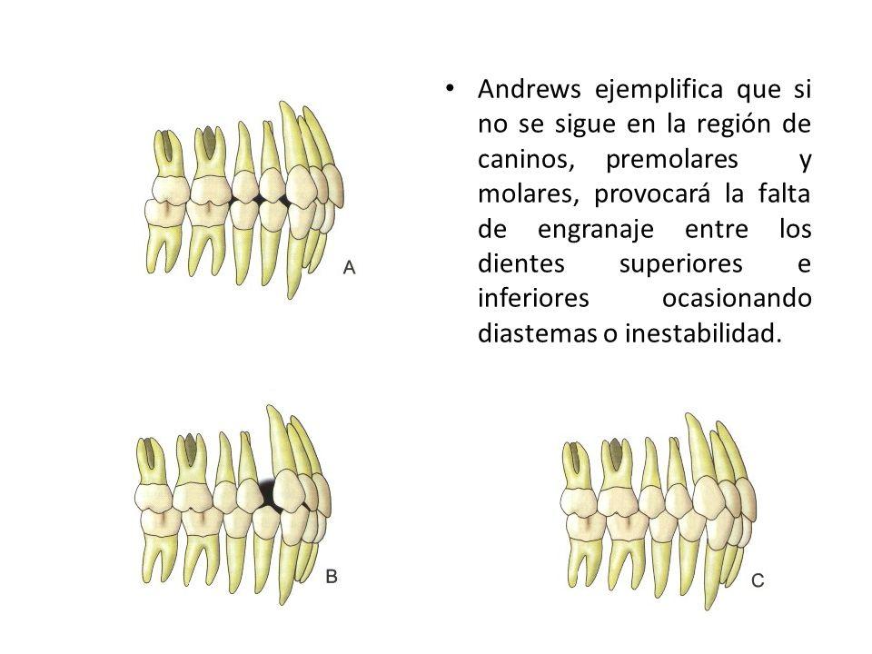 Andrews ejemplifica que si no se sigue en la región de caninos, premolares y molares, provocará la falta de engranaje entre los dientes superiores e i