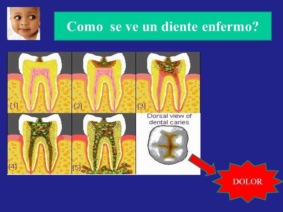 Como se ve un diente enfermo? DOLOR