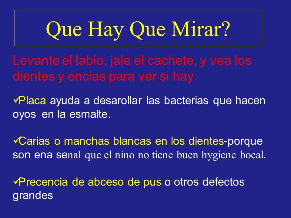 Que Hay Que Mirar? Levante el labio, jale el cachete, y vea los dientes y encias para ver si hay: Placa ayuda a desarollar las bacterias que hacen oyo