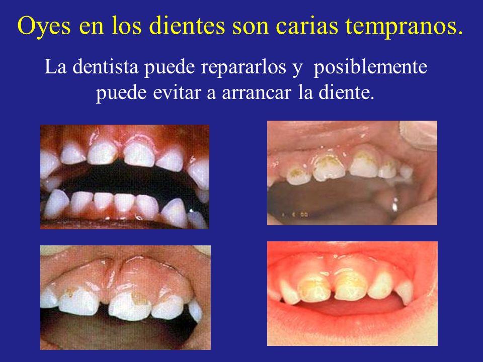Oyes en los dientes son carias tempranos. La dentista puede repararlos y posiblemente puede evitar a arrancar la diente.