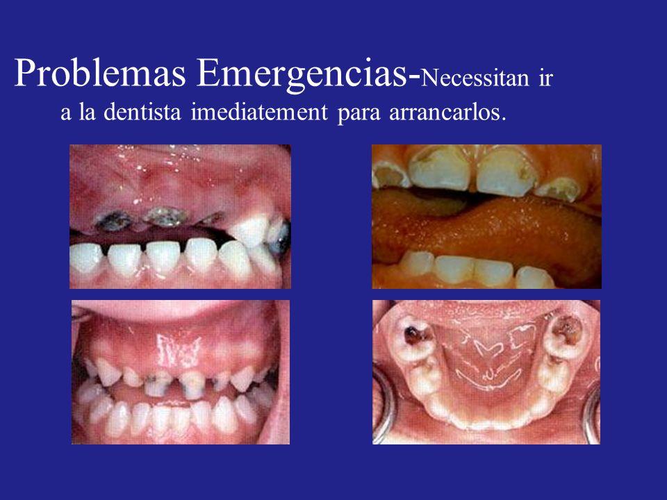 Problemas Emergencias- Necessitan ir a la dentista imediatement para arrancarlos.
