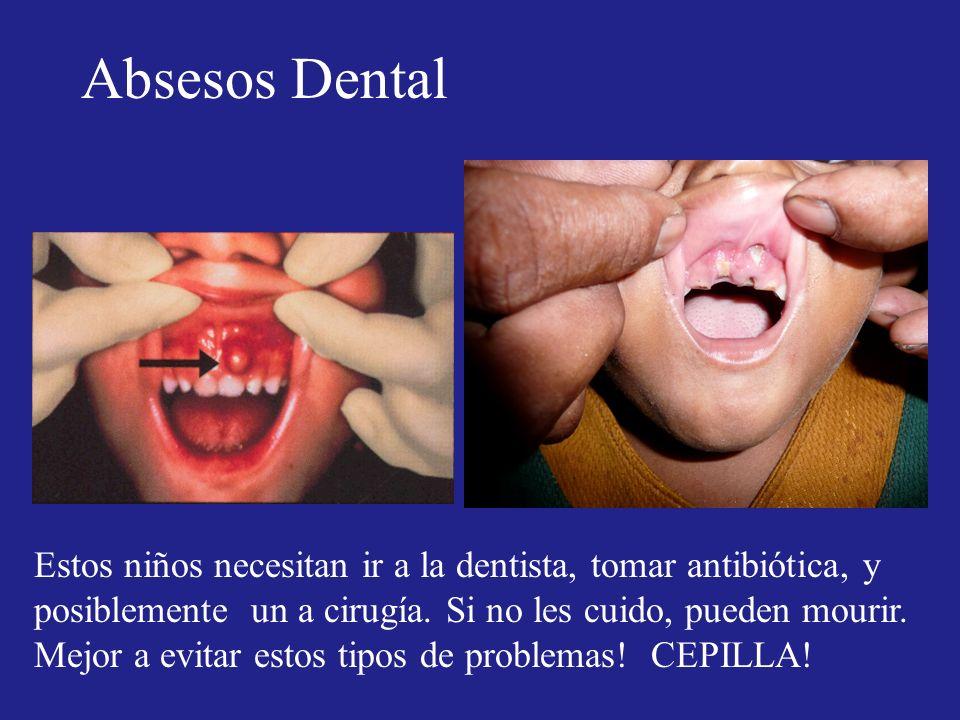 Absesos Dental Estos niños necesitan ir a la dentista, tomar antibiótica, y posiblemente un a cirugía. Si no les cuido, pueden mourir. Mejor a evitar