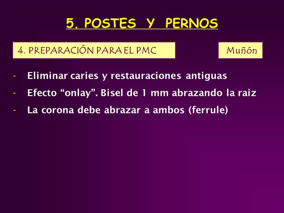 5.POSTES Y PERNOS -Eliminar caries y restauraciones antiguas -Efecto onlay.