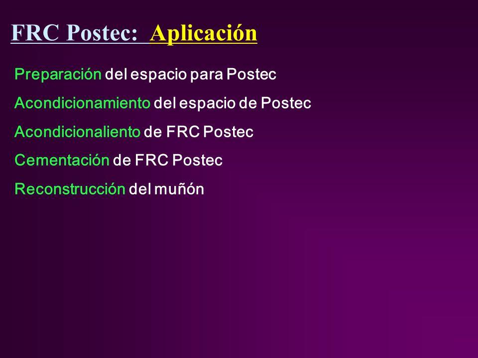 Preparación del espacio para Postec Acondicionamiento del espacio de Postec Acondicionaliento de FRC Postec Cementación de FRC Postec Reconstrucción del muñón FRC Postec: Aplicación