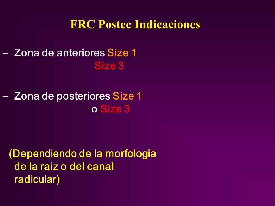 FRC Postec Indicaciones –Zona de anteriores Size 1 Size 3 –Zona de posteriores Size 1 o Size 3 (Dependiendo de la morfologia de la raiz o del canal ra
