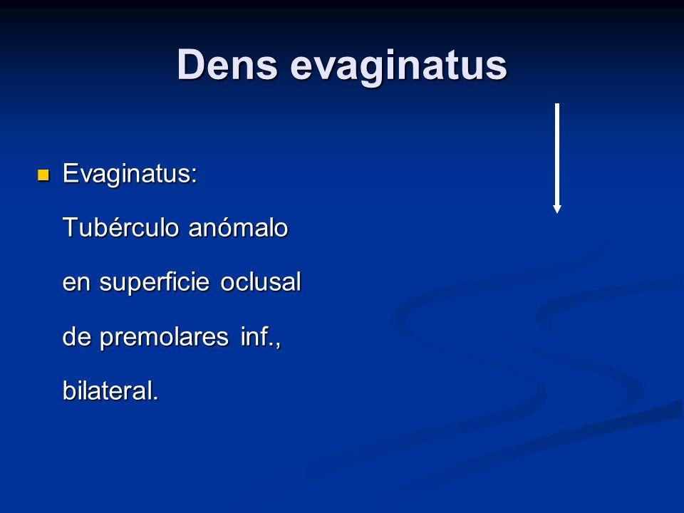 Dens evaginatus Evaginatus: Tubérculo anómalo en superficie oclusal de premolares inf., bilateral. Evaginatus: Tubérculo anómalo en superficie oclusal