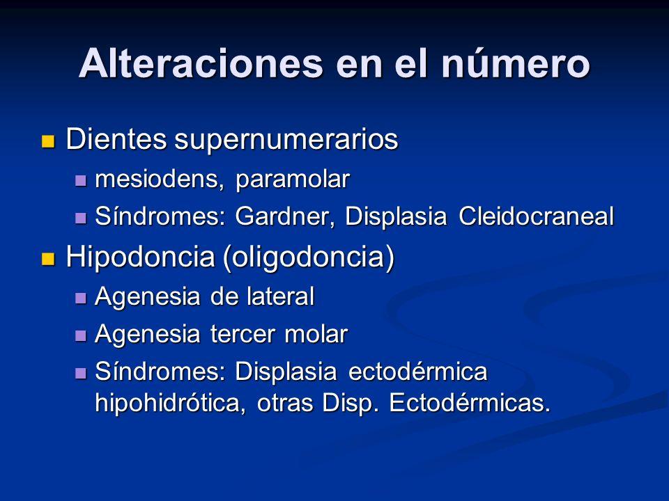 Alteraciones en el número Dientes supernumerarios Dientes supernumerarios mesiodens, paramolar mesiodens, paramolar Síndromes: Gardner, Displasia Clei