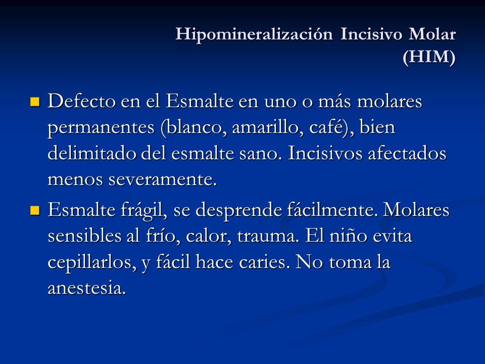 Hipomineralización Incisivo Molar (HIM) Defecto en el Esmalte en uno o más molares permanentes (blanco, amarillo, café), bien delimitado del esmalte s