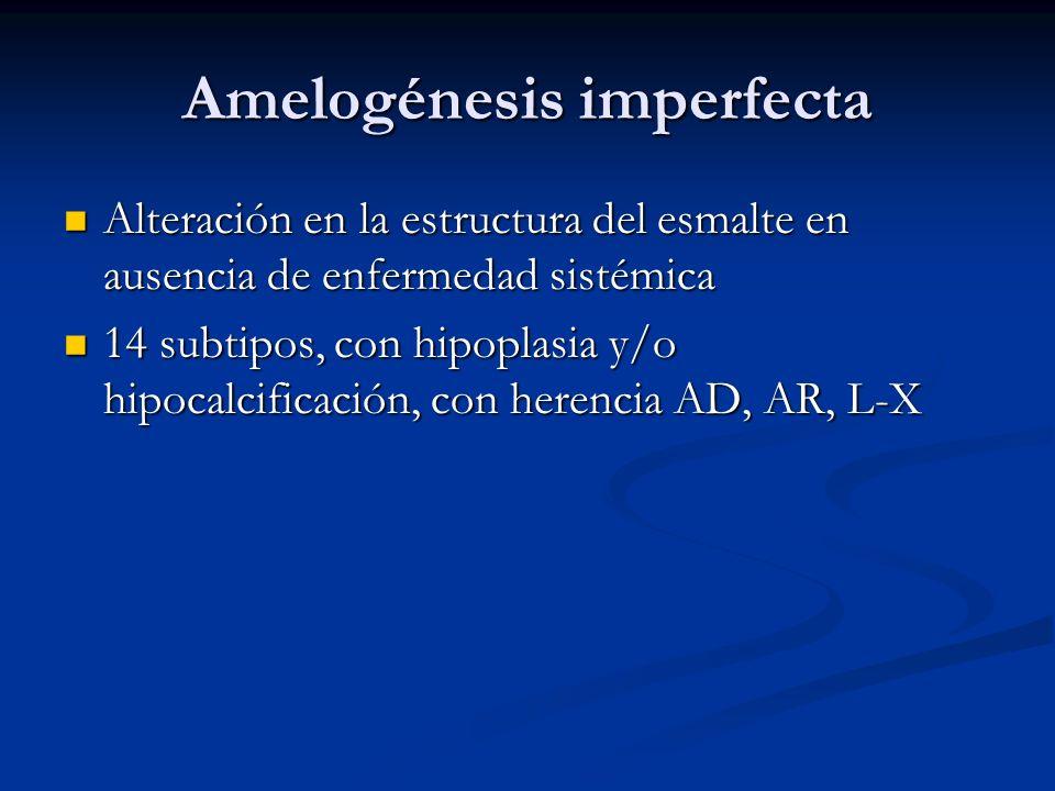 Amelogénesis imperfecta Alteración en la estructura del esmalte en ausencia de enfermedad sistémica Alteración en la estructura del esmalte en ausenci