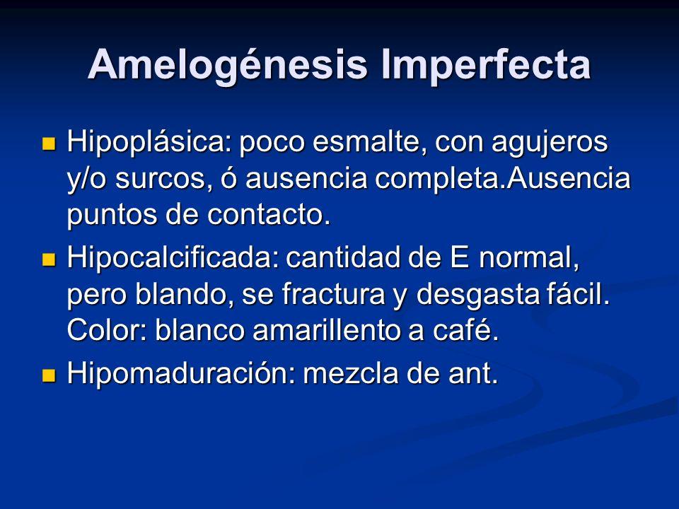 Amelogénesis Imperfecta Hipoplásica: poco esmalte, con agujeros y/o surcos, ó ausencia completa.Ausencia puntos de contacto. Hipoplásica: poco esmalte