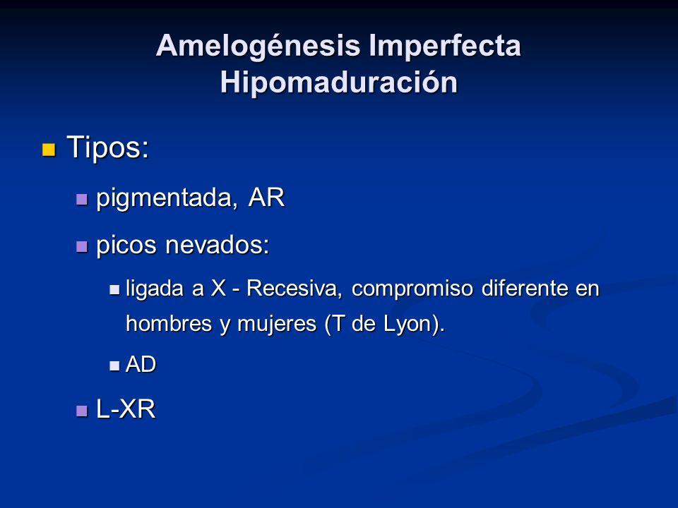 Amelogénesis Imperfecta Hipomaduración Tipos: Tipos: pigmentada, AR pigmentada, AR picos nevados: picos nevados: ligada a X - Recesiva, compromiso dif