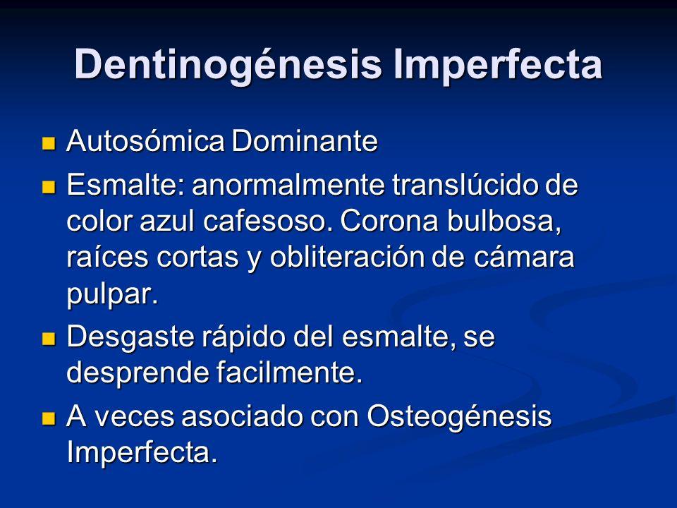 Dentinogénesis Imperfecta Autosómica Dominante Autosómica Dominante Esmalte: anormalmente translúcido de color azul cafesoso. Corona bulbosa, raíces c