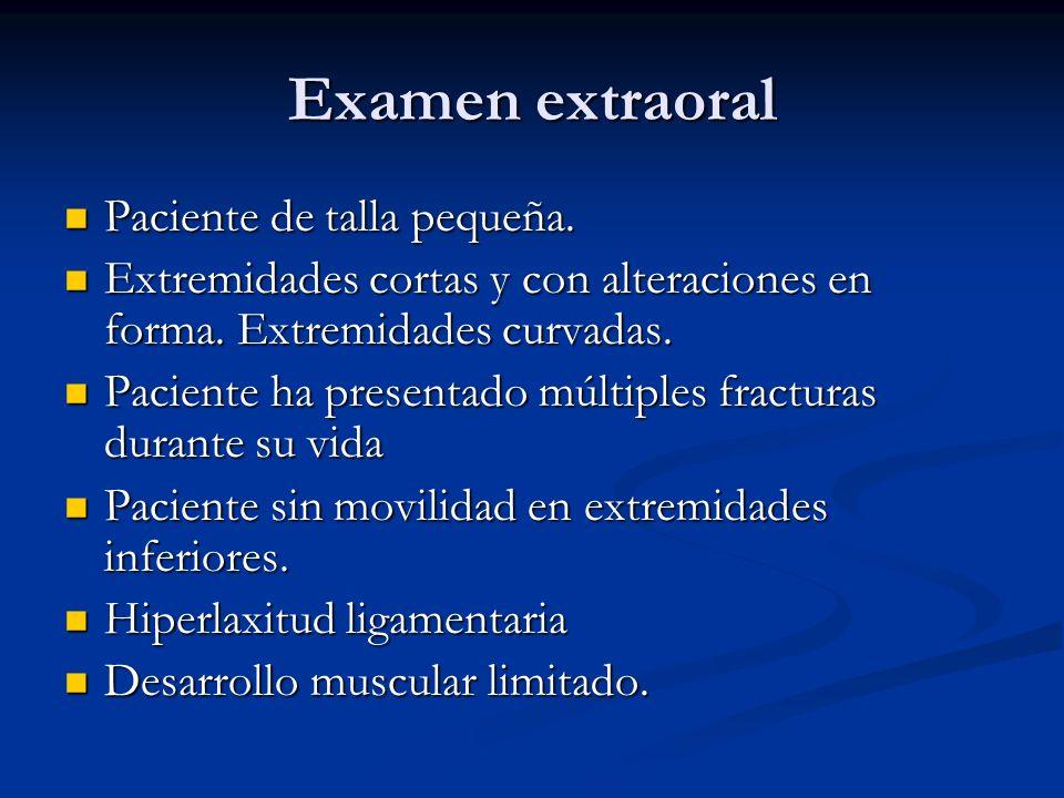 Examen extraoral Paciente de talla pequeña. Paciente de talla pequeña. Extremidades cortas y con alteraciones en forma. Extremidades curvadas. Extremi