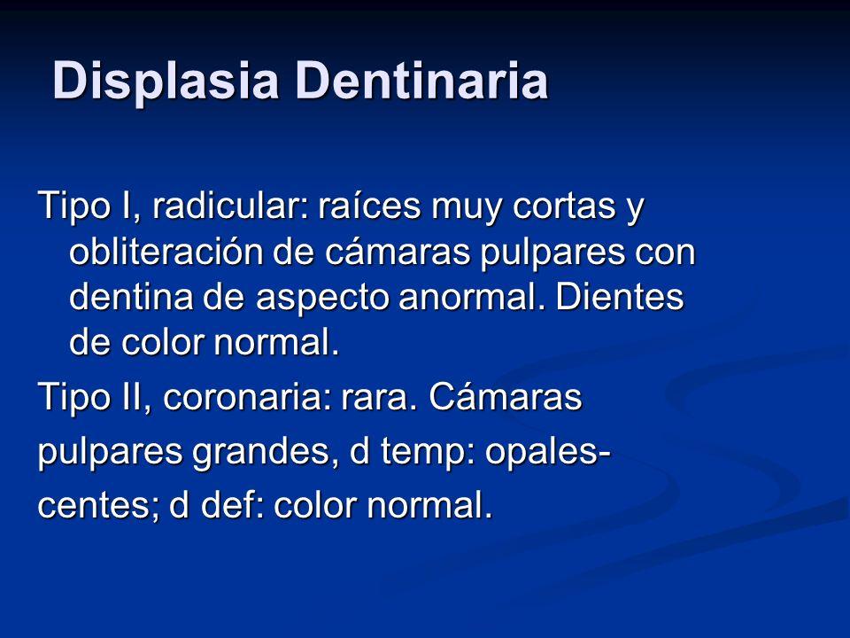 Displasia Dentinaria Tipo I, radicular: raíces muy cortas y obliteración de cámaras pulpares con dentina de aspecto anormal. Dientes de color normal.