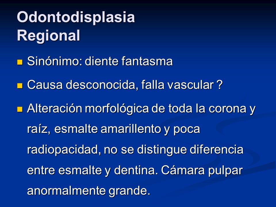 Odontodisplasia Regional Sinónimo: diente fantasma Sinónimo: diente fantasma Causa desconocida, falla vascular ? Causa desconocida, falla vascular ? A