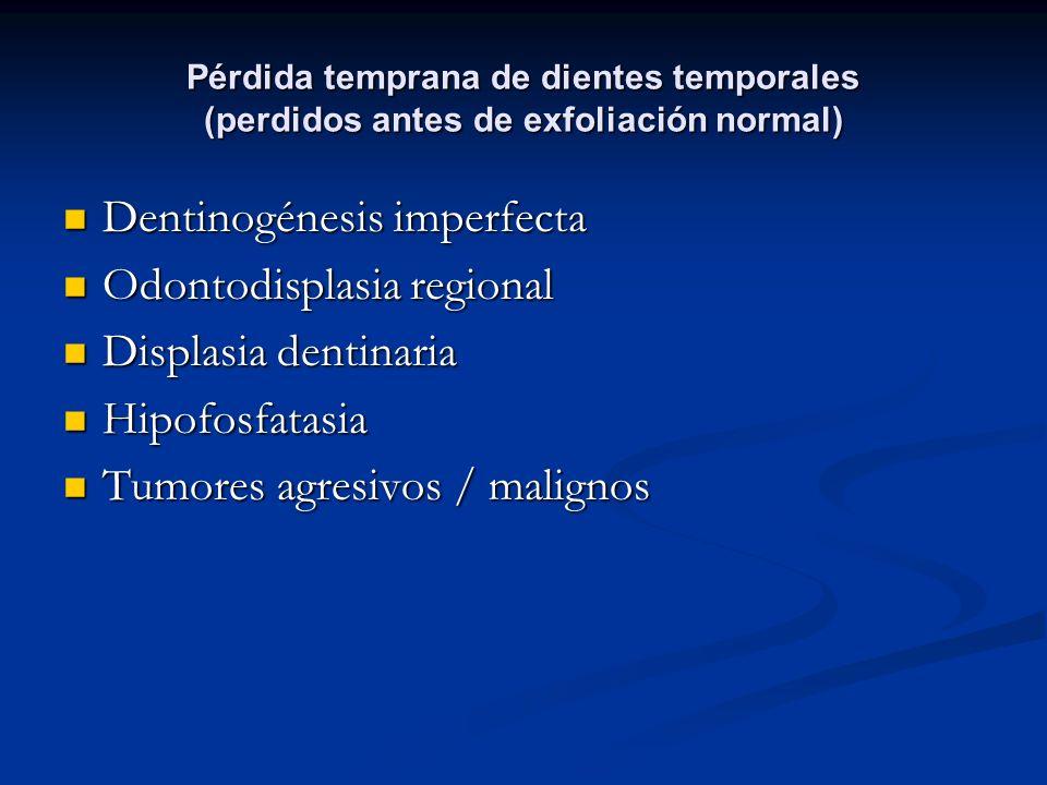 Pérdida temprana de dientes temporales (perdidos antes de exfoliación normal) Dentinogénesis imperfecta Dentinogénesis imperfecta Odontodisplasia regi