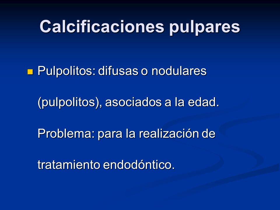 Calcificaciones pulpares Pulpolitos: difusas o nodulares (pulpolitos), asociados a la edad. Problema: para la realización de tratamiento endodóntico.