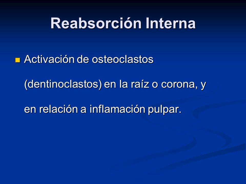 Reabsorción Interna Activación de osteoclastos (dentinoclastos) en la raíz o corona, y en relación a inflamación pulpar. Activación de osteoclastos (d