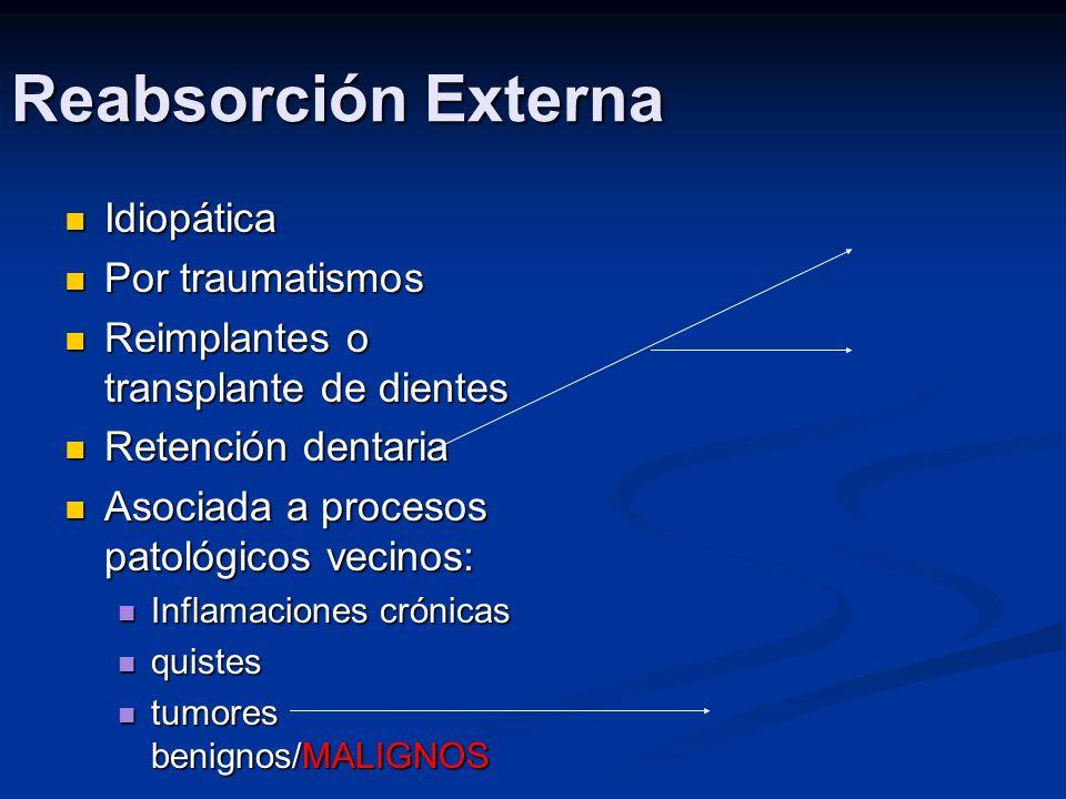 Reabsorción Externa Idiopática Idiopática Por traumatismos Por traumatismos Reimplantes o transplante de dientes Reimplantes o transplante de dientes
