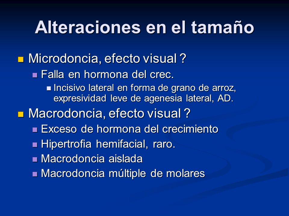 Alteraciones en el tamaño Microdoncia, efecto visual ? Microdoncia, efecto visual ? Falla en hormona del crec. Falla en hormona del crec. Incisivo lat