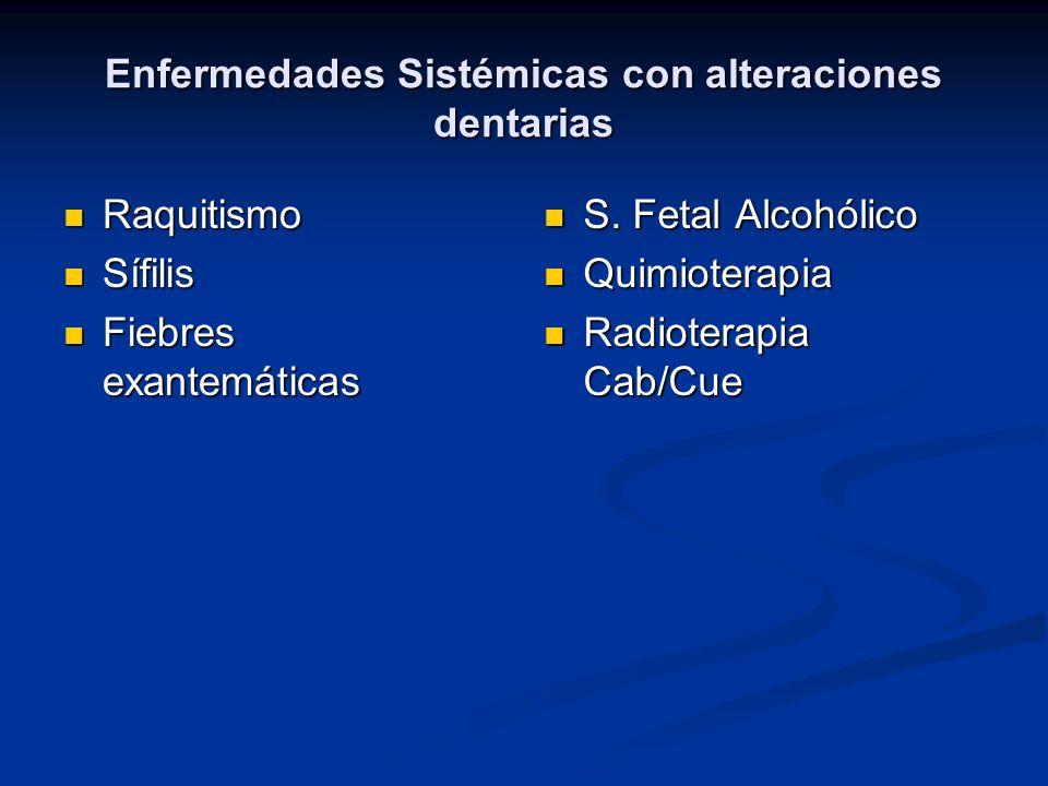 Enfermedades Sistémicas con alteraciones dentarias Raquitismo Raquitismo Sífilis Sífilis Fiebres exantemáticas Fiebres exantemáticas S. Fetal Alcohóli