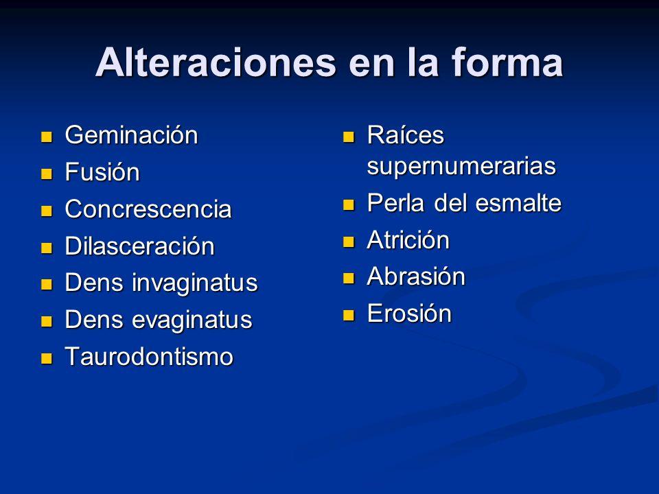 Reabsorción Interna Activación de osteoclastos (dentinoclastos) en la raíz o corona, y en relación a inflamación pulpar.