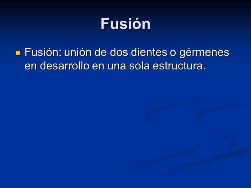 Fusión Fusión: unión de dos dientes o gérmenes en desarrollo en una sola estructura. Fusión: unión de dos dientes o gérmenes en desarrollo en una sola